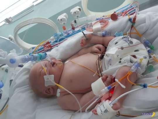Ребёнок с редкой аномалией родился в Великобритании