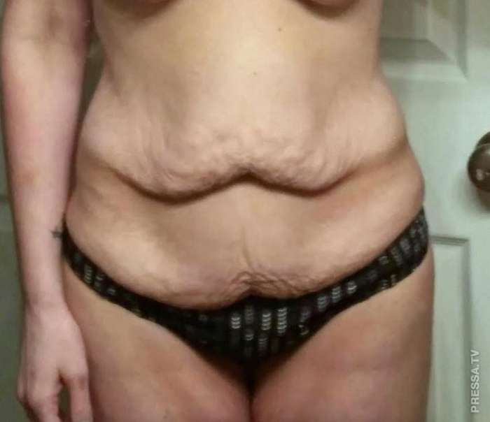 У женщины после похудения кожа висела, как у шарпея...