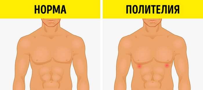 10биологических аномалий человека, которые демонстрируют, насколько непредсказуема генетика