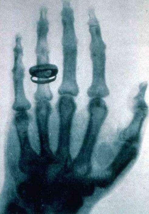 Рентген и пенициллин: 6 случайных изобретений, которые изменили мир