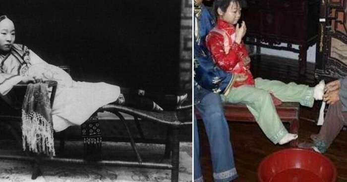 Красота через боль: пугающие факты о бинтовании ног в Китае                     (11 фото)