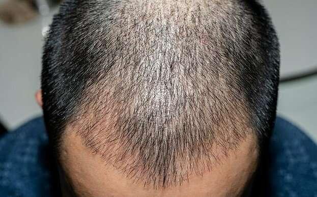 Пересадка волос опасна для здоровья-4 фото-