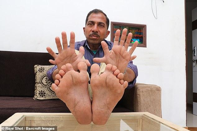 У индийца рекордные 28 пальцев на руках и ногах  Интересное