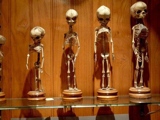Самые страшные музеи из разных стран мира-7 фото-