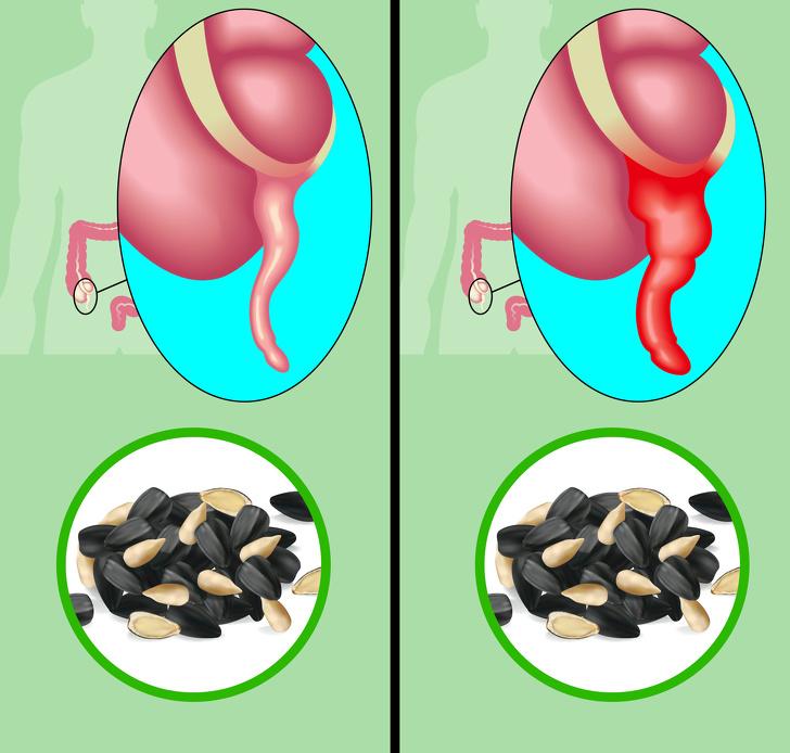 Что происходит с организмом, когда вы часто едите семечки  Интересное