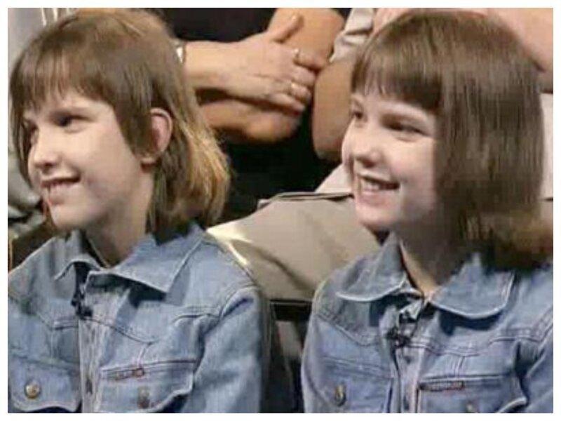Как живут сейчас первые удачно разделенные в СССР сиамские близнецы-10 фото-