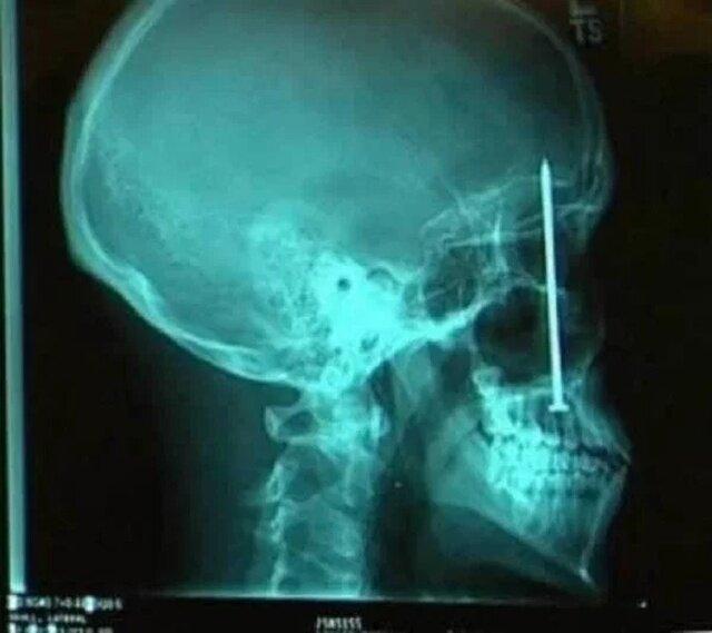 Мир глазами рентгенолога-18 фото + 3 гиф-