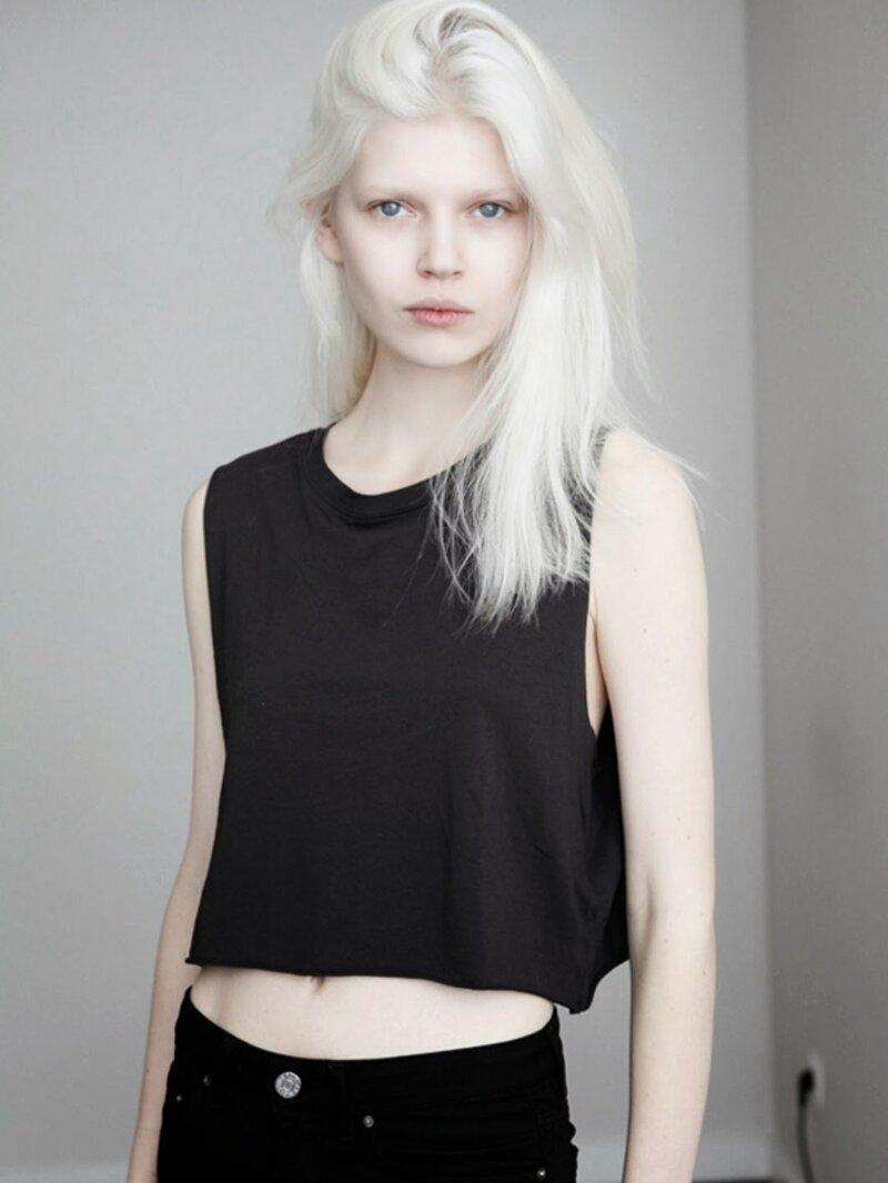 Нетипичная красота: яркие девушки-альбиносы-19 фото-
