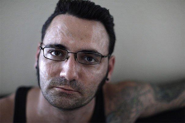 Бывший скинхед вывел с лица татуировки и начал новую жизнь