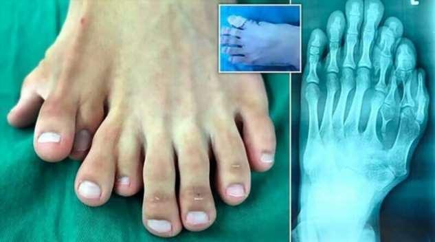 В Китае врачи прооперировали юношу с 9 пальцами на одной ноге