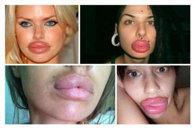 Бабьи накачанные губы и мужские мысли на эту тему (20 фото + 1 гиф) мужчин, Девушки, Моментальное, увеличение, статистике, вызывает, взгляд, женский789, дедовский, метод10, новомодный, метод, инстаблогерш1112, перестаньте, эксперименты, губами, ассоциации…13141516, только, Женские, Натуральное