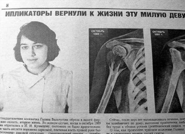 Кровавая история ипликатора Кузнецова  Интересное