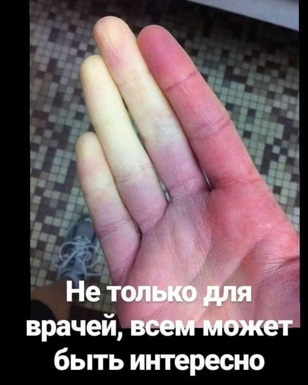 Про болезнь Рейно и пальцы