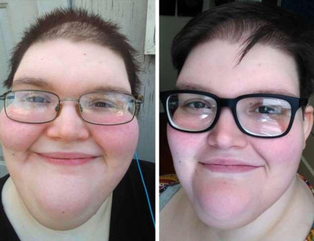 20 примеров того, как лица людей изменились после долгожданного похудения обещание, похудение, начать, чтобы, лучшей, мотивации, примеры, других, Поэтому, преобразило, хотим, оценили, знает, меняет, людей, только, красоте1234567891011121314151617181920Согласитесь, больше, половины, Давая