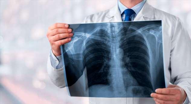 Основные признаки скрытой пневмонии Интересное