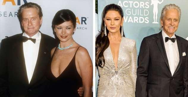 Как выглядели в начале карьеры звездные пары, в которых оба супруга увлеклись бьюти-процедурами