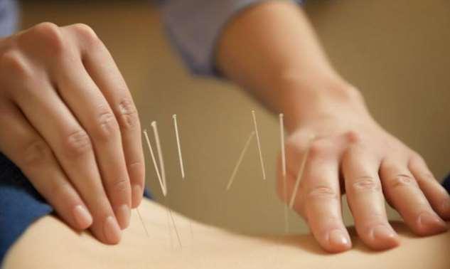 Акупунктура и акупунктурные точки на теле человека  Интересное
