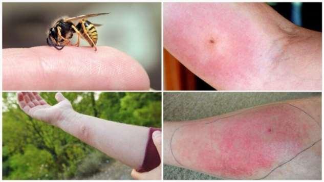 Жужжащие, жгущие, жалящие: какую опасность несут насекомые с жалом?  Интересное