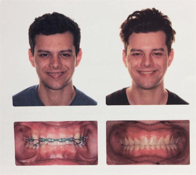 До и после: как брекеты кардинально меняют внешность  Интересное